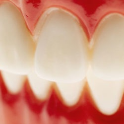 Die richtige Orientierung rund um Zahnersatz
