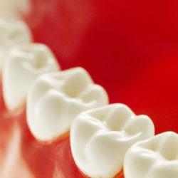 Zahnärzte & Dentallabore: Gemeinsam für günstigen Zahnersatz!